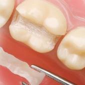 Restaurative Zahnbehandlung